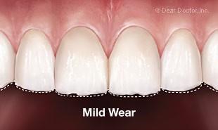 Bruxisme / grincement des dents - Usure dentaire légère