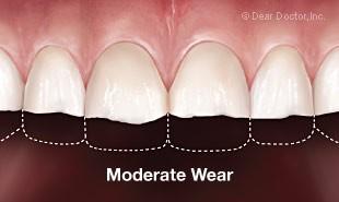 Bruxisme / grincement des dents - Usure dentaire modérée