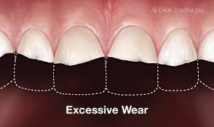 Bruxisme / grincement des dents - Usure dentaire sévère